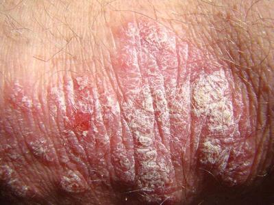 身体出现点滴型银屑病皮肤症状